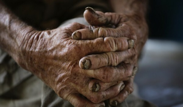 Cuban farmhand Castillo, nicknamed Lilly, rests with his hands on his knee while doing chores on a neighbour's dairy farm in Aranguito